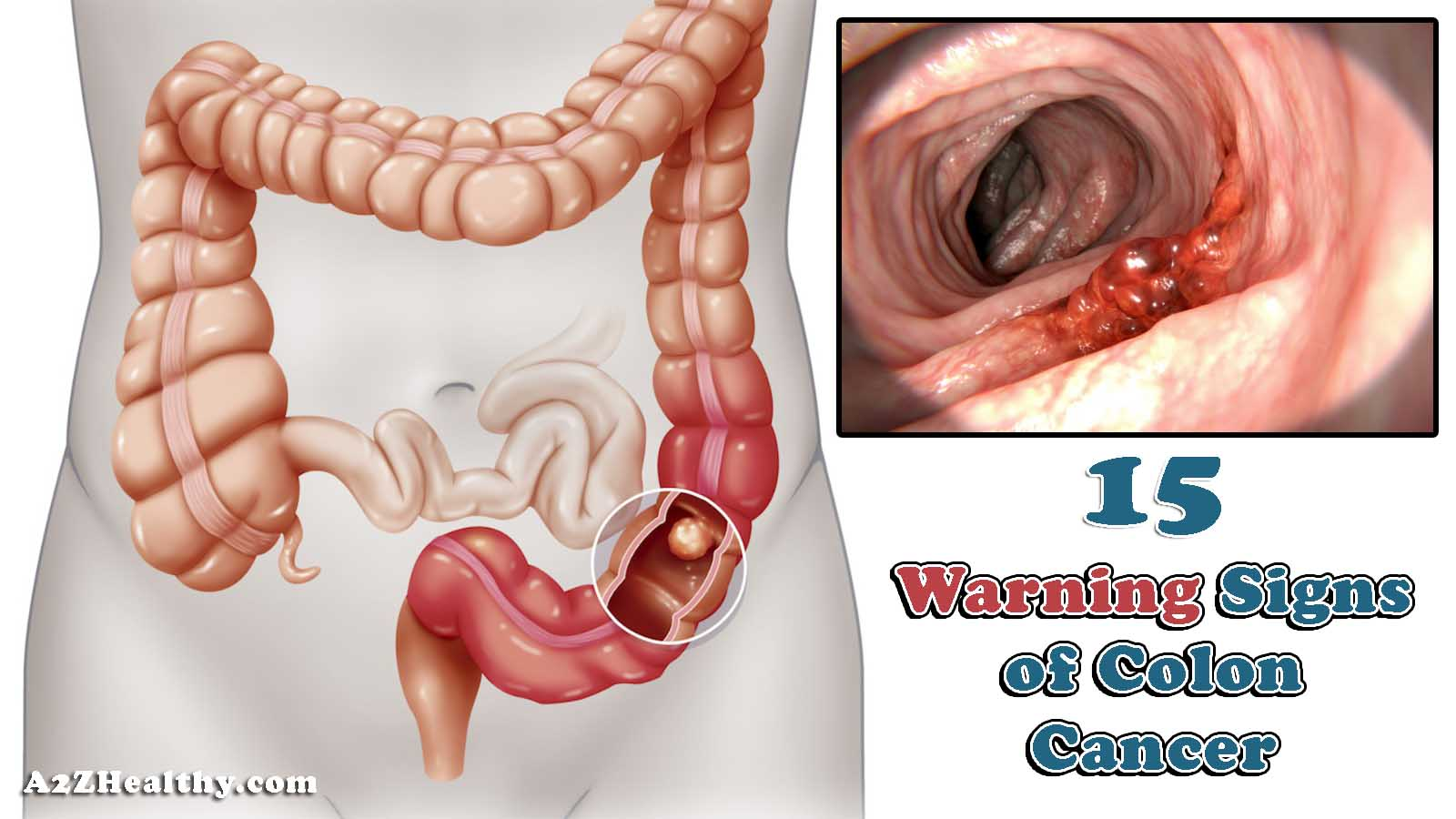 15 Signs & Symptoms of Colon Cancer