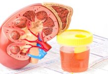 18 Signs and symptoms of kidney infection