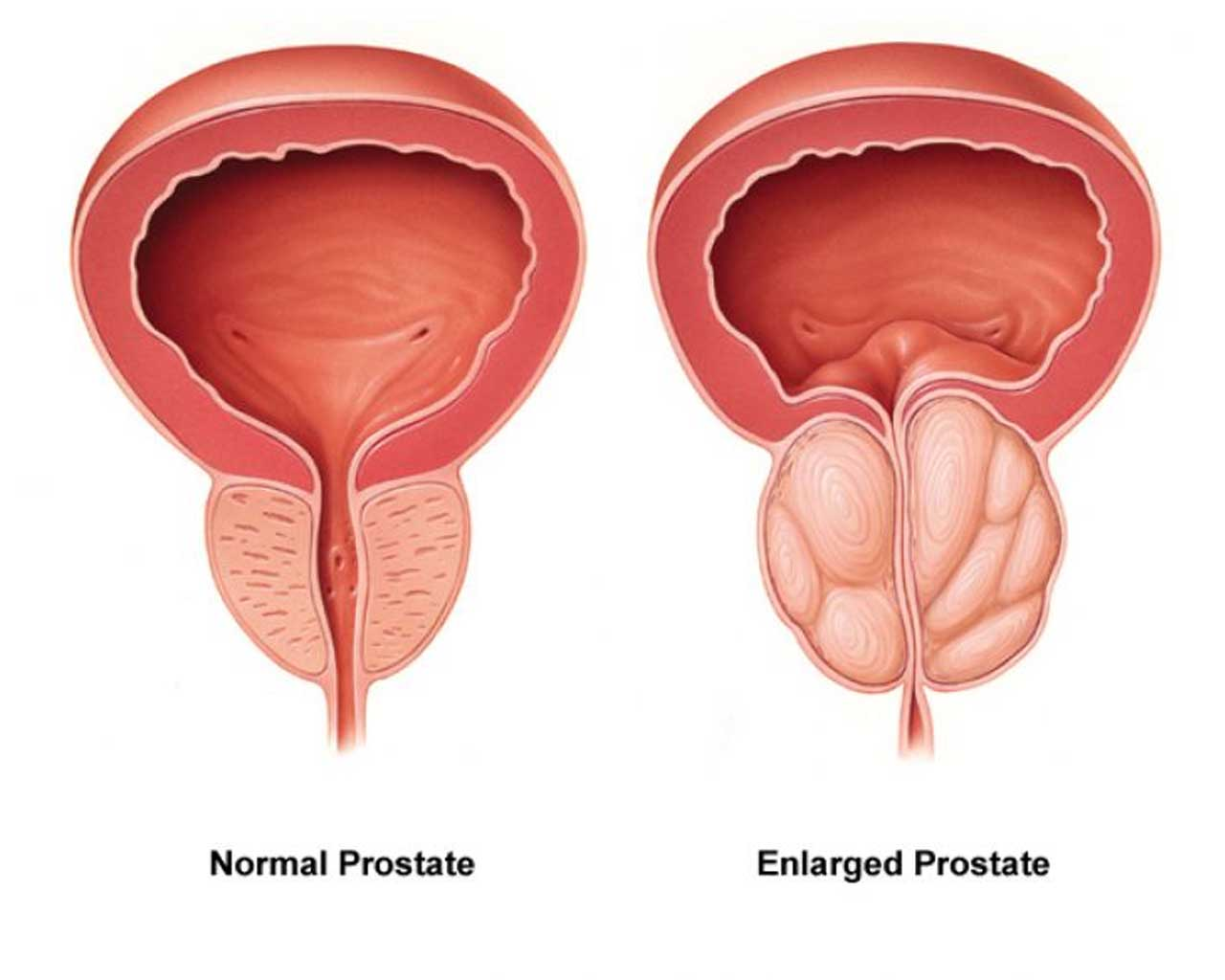 Prostate cancer symptoms, Weak urine flow